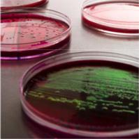Prevenire le tossinfezioni alimentari